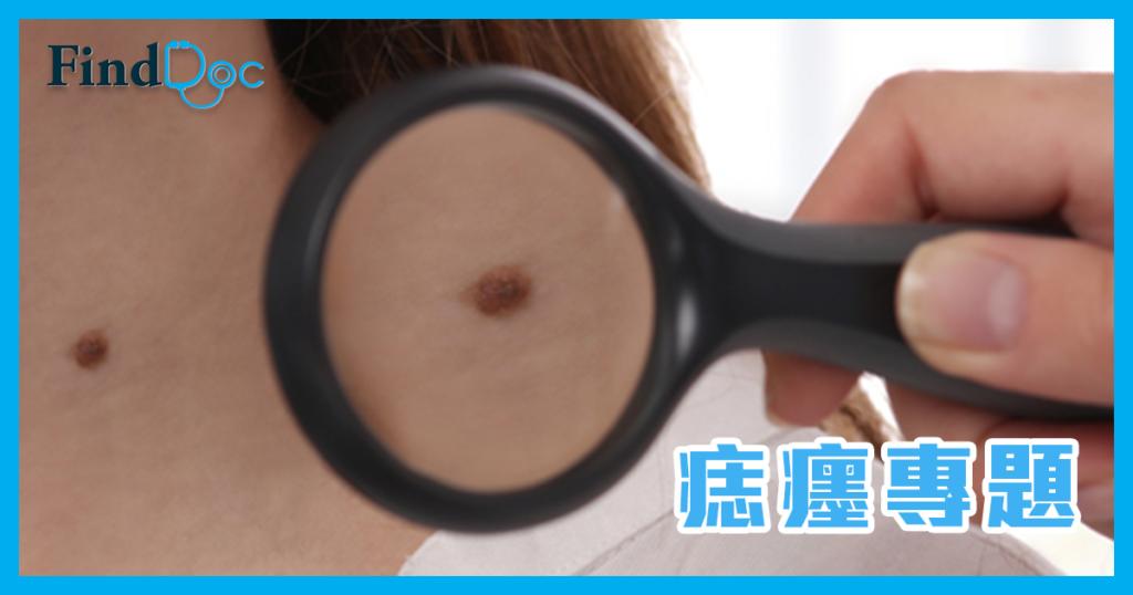 黑痣會演變成皮膚癌嗎?