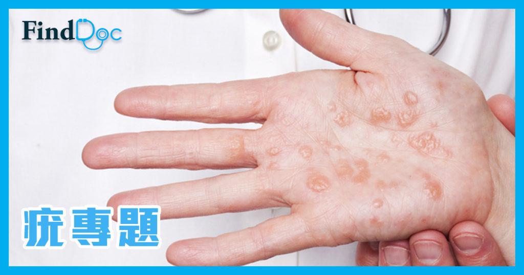 手指上生了一粒粒,究竟是甚麼?