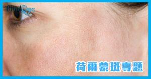荷尔蒙斑的成因是什么?