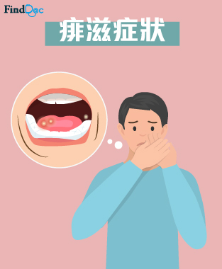 aphthous-ulcers-symptom